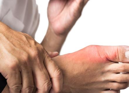 痛風・高尿酸血症のよくある誤解10選