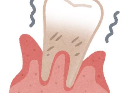 歯周病対策にはビタミンCとたんぱく質を摂ろう!